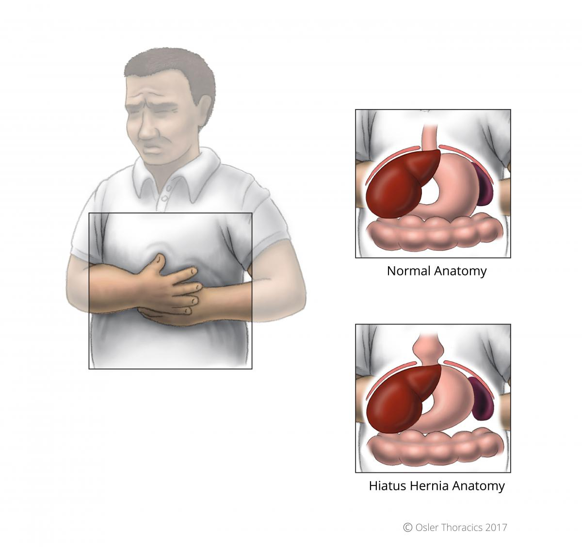 REPAIR OF HIATUS HERNIA | patients.oslerthoracicsurgery.dev